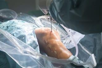 L'artroscopia del ginocchio