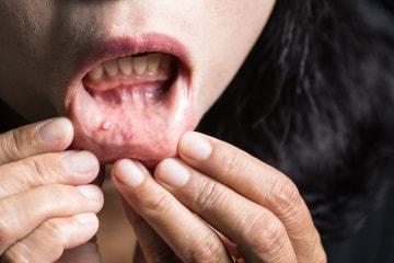 puntino nero sul labbro inferiore