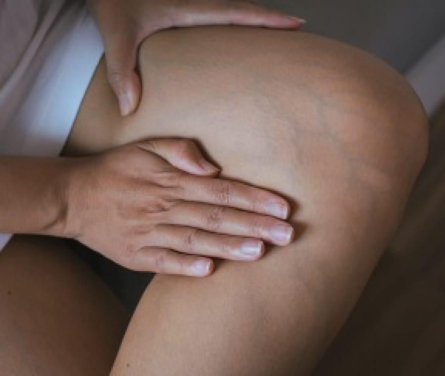 Dermatite da Stasi - Eczema Varicoso