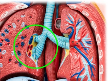 Malattia Polmonare