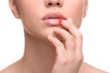 papilloma virus sulle labbra