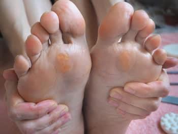 Duroni ai piedi, rimedi naturali e consigli - Idee Green