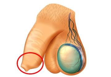 lorgano genitale maschile in stato di erezione)