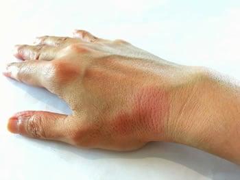 Sintomi Lupus eritematoso sistemico