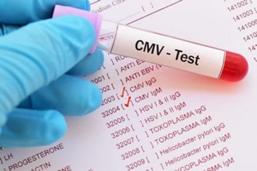 Citomegalovirus in Gravidanza