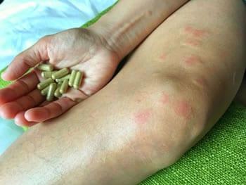 come si prende la malattia lupus