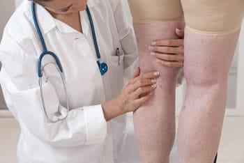 gambe di livedo reticularis