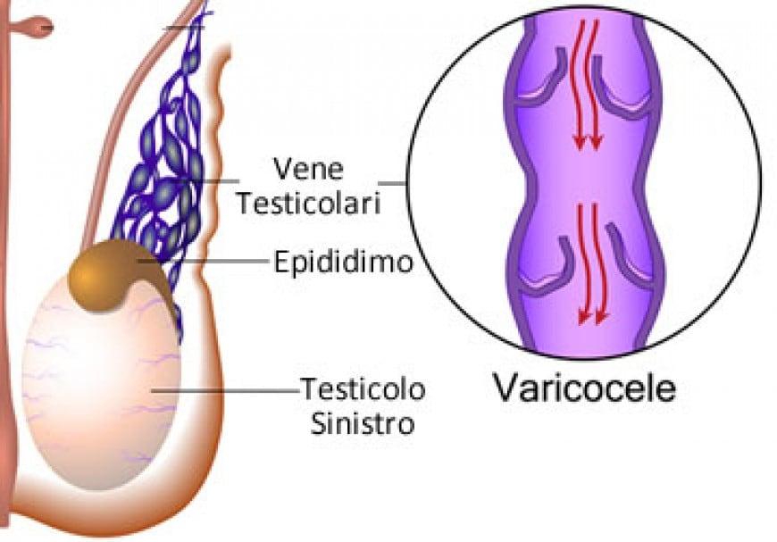 Varicocele: Cause - Fisiologia