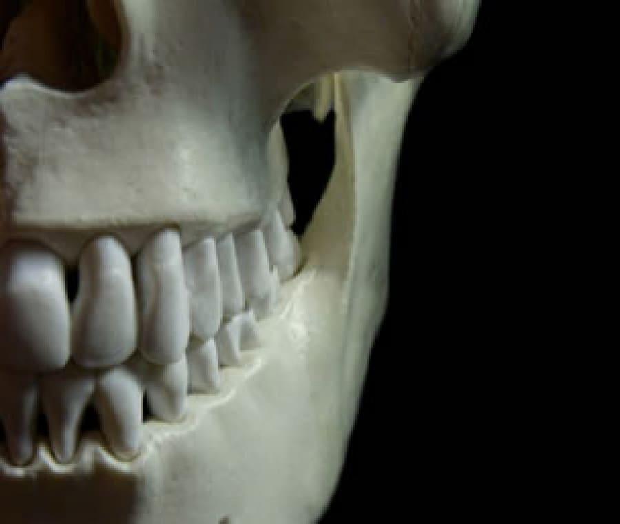 Mandibola: Differenze con Mascella, Osteonecrosi e Infarto