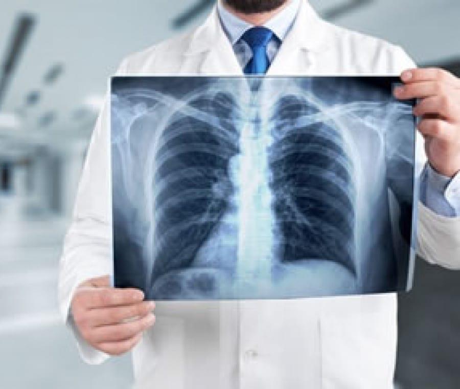 Radiografia del Torace: Cos'è? Come si Esegue? Quando Serve?