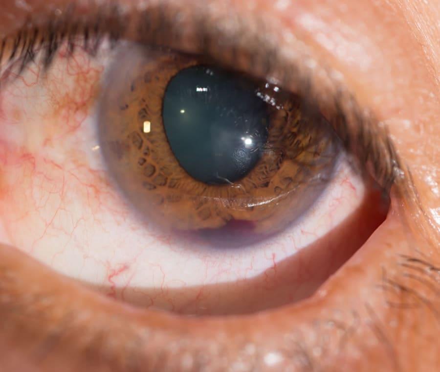 Ifema – Sangue nella Camera Anteriore dell'Occhio