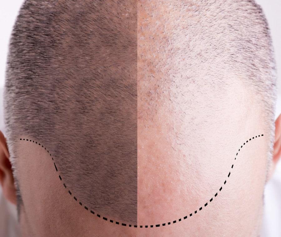 Ricrescita dei capelli: quali soluzioni?