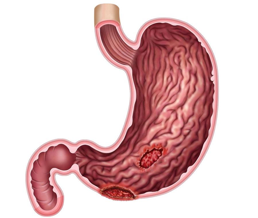 Ulcera Gastrica
