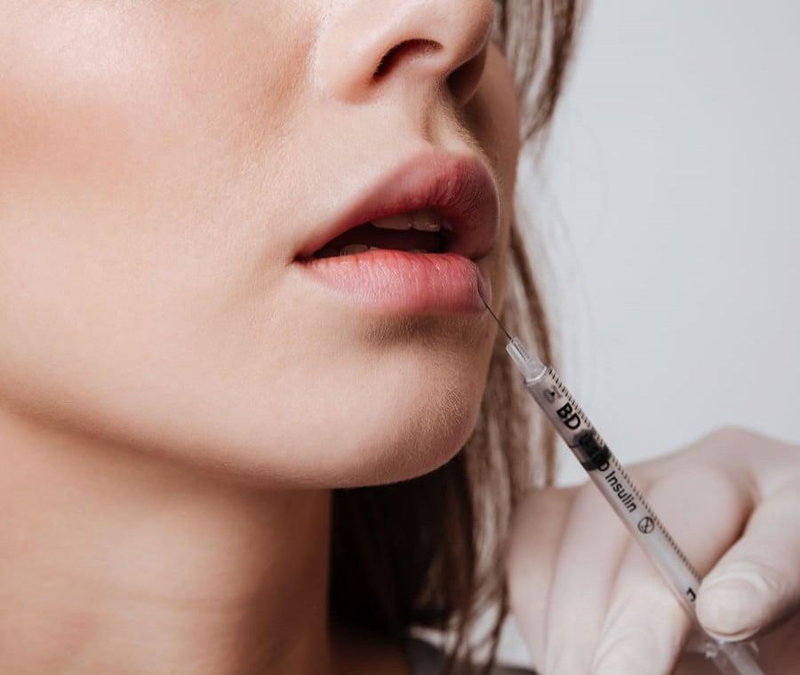 Labbra: Medicina e Chirurgia Estetica per Migliorarle