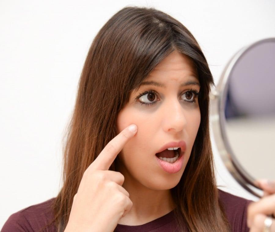 Eliminare le Occhiaie: come fare?
