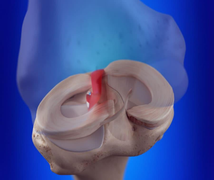 Legamento Crociato Anteriore: Cos'è? Anatomia, Funzione e Patologie