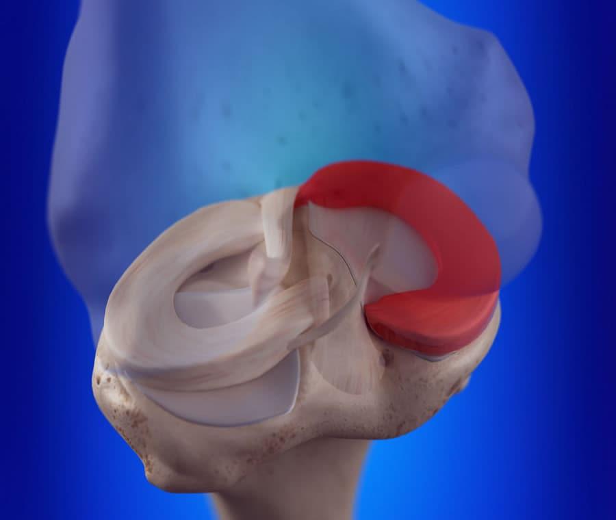 Menisco Mediale: Cos'è? Anatomia, Funzione e Patologie