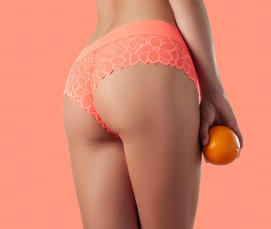 Combattere E Sconfiggere La Cellulite