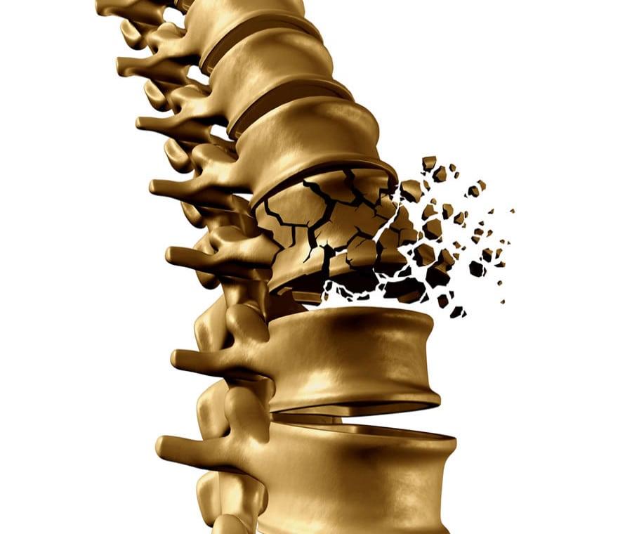 Frattura Vertebrale: Cause, Sintomi e Cura