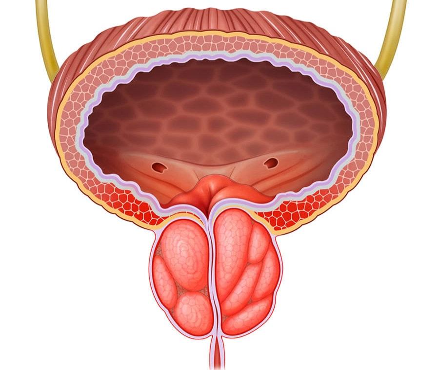 prostatitis simptomi forum