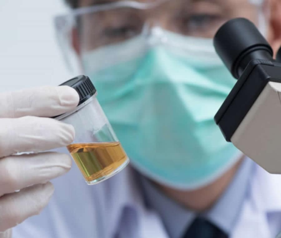 Rapporto Albumina-Creatinina e Proteine-Creatinina nelle Urine