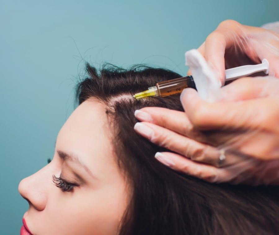 PRP Capelli – Trattamento Alopecia