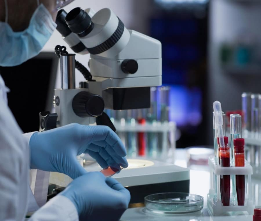 ENA (Antigeni Nucleari Estraibili) - ENA Screening o Pannello ENA