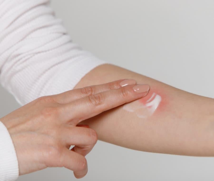 Farmaci per la Cura della Dermatite Allergica