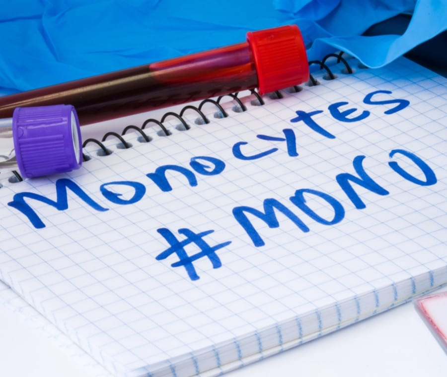 Monocitosi (Monociti Alti): Quando Preoccuparsi?