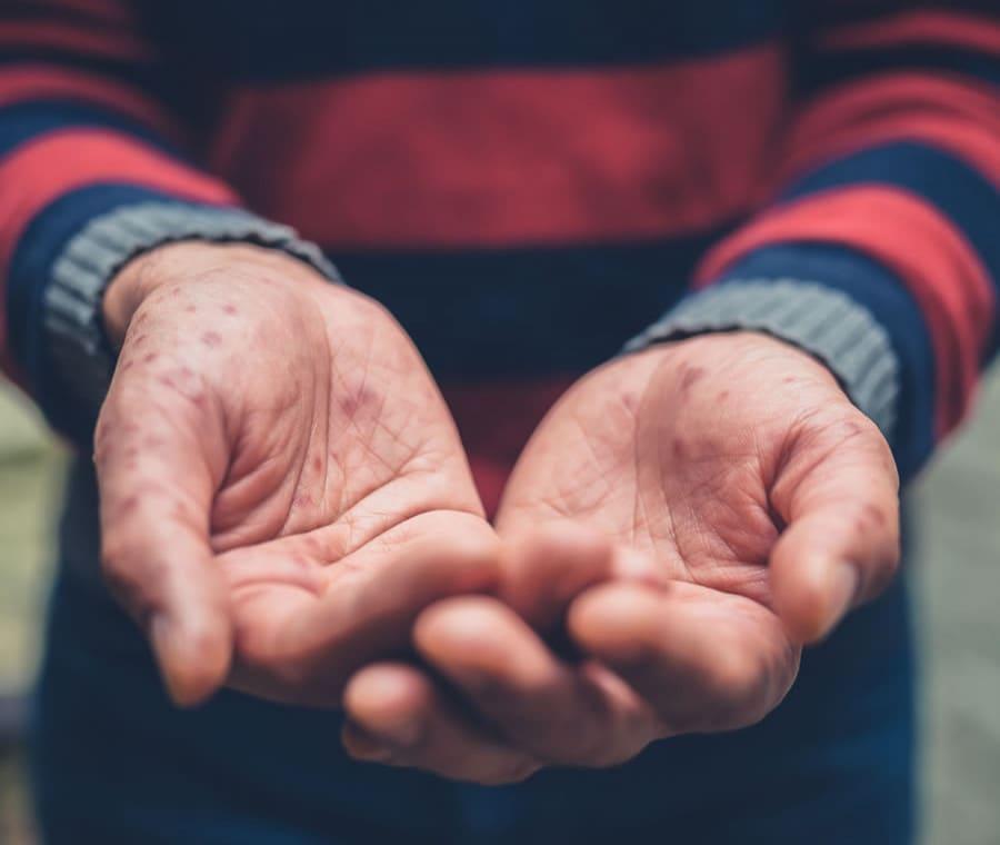Morbillo negli Adulti: è Pericoloso? Cura e Prevenzione