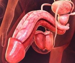 linfoadenite del pene