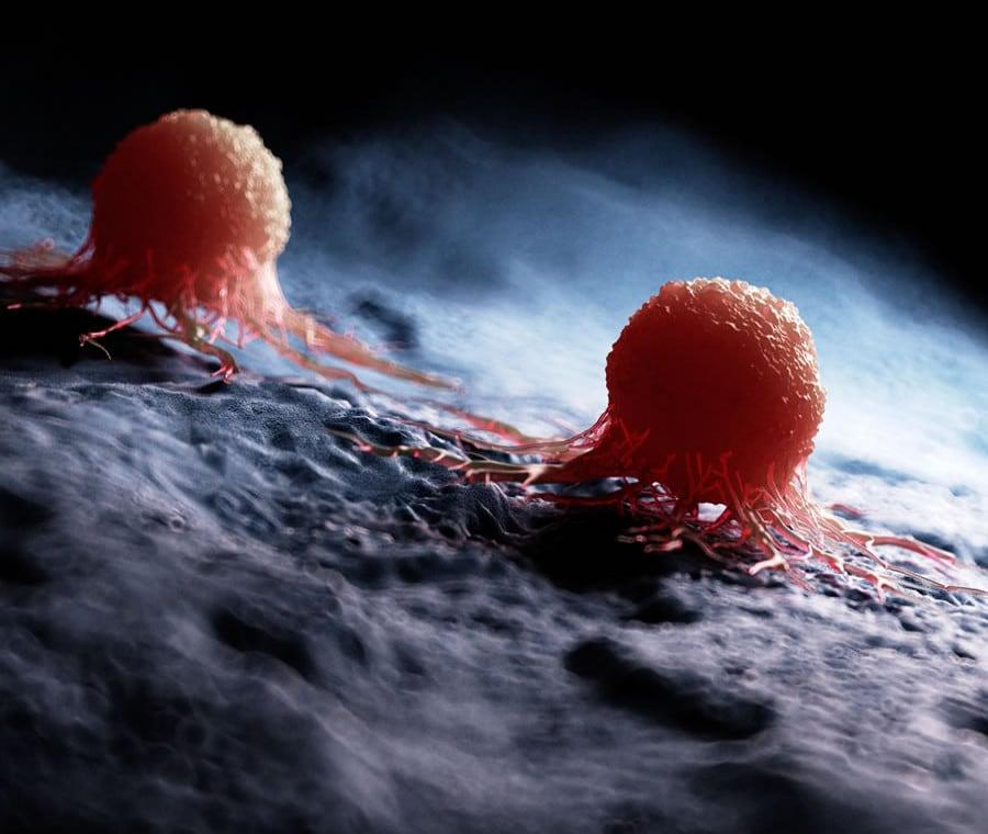 Carcinomi: Definizione, Cause e Diagnosi