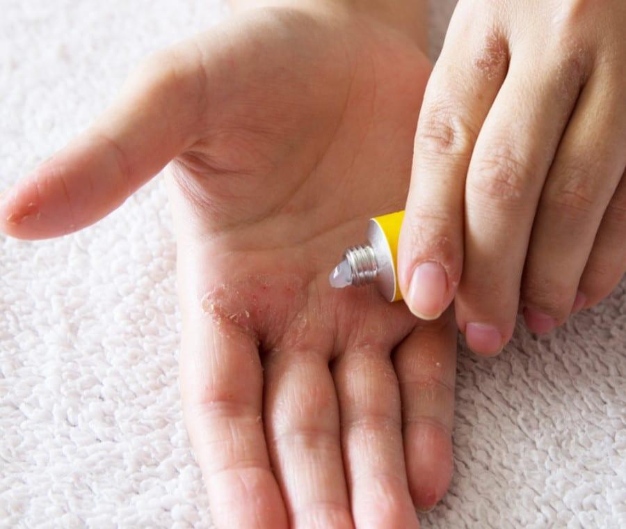 Psoriasi - Farmaci per la Cura della Psoriasi