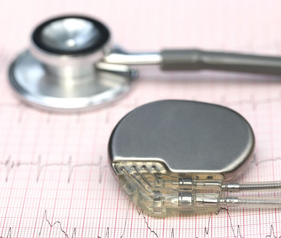 Pacemaker: Cos'è? A Cosa Serve e Intervento