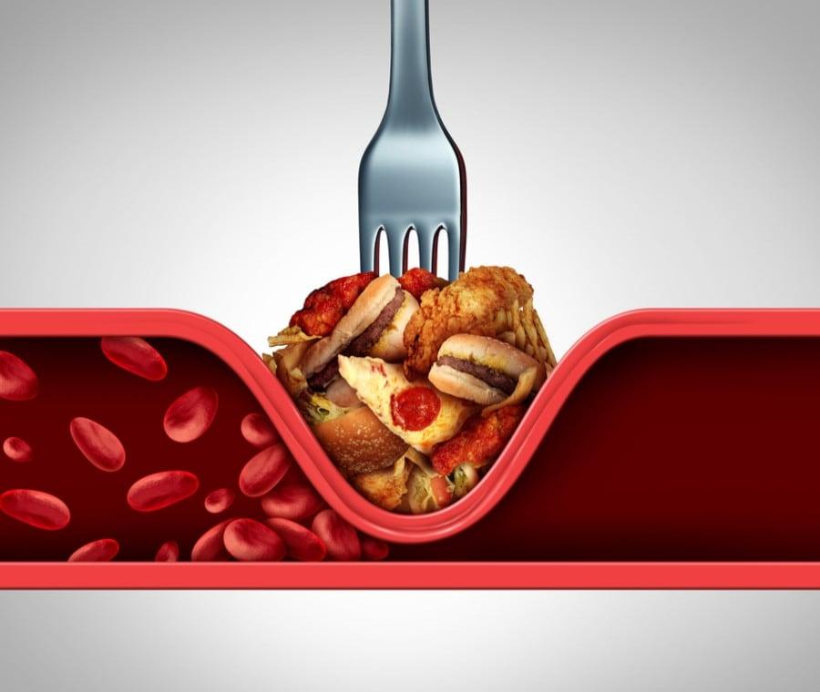 dieta e colesterolo)
