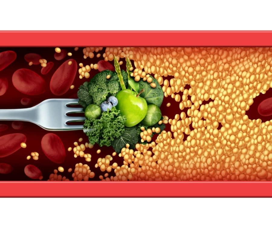 Dieta per Diminuire il Colesterolo