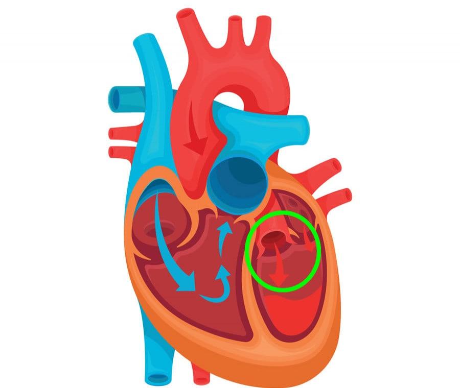 Insufficienza Aortica: Cause, Sintomi e Cura