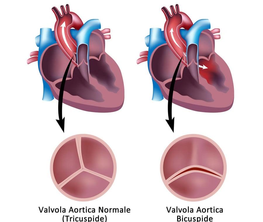 Valvola Aortica Bicuspide: Cos'è, Sintomi e Cura