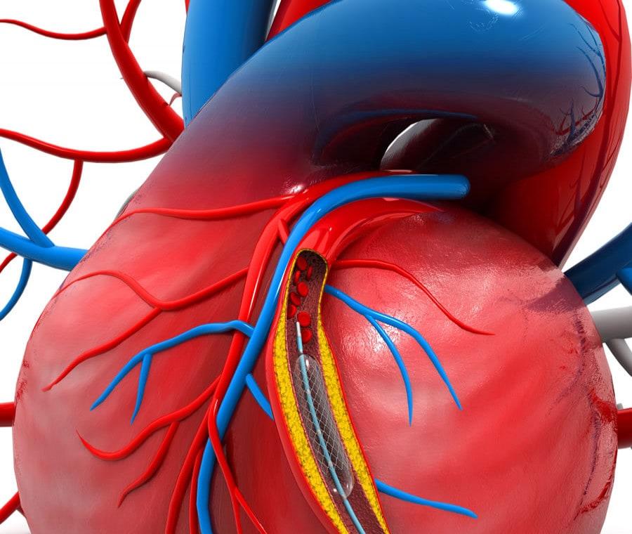Angioplastica Coronarica: A Cosa Serve e Come si Esegue?