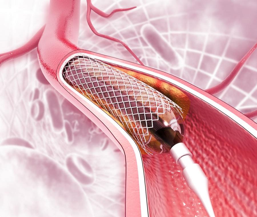 Angioplastica: A Cosa Serve e Come si Esegue?