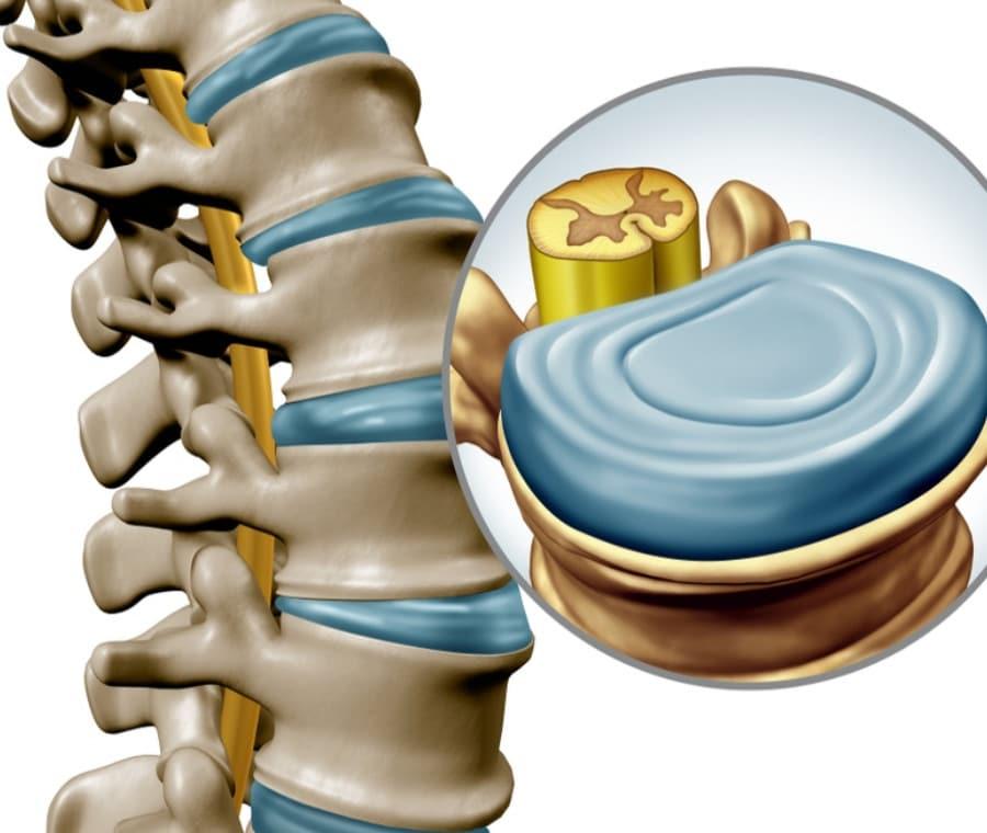 Dischi Intervertebrali e Mal di Schiena