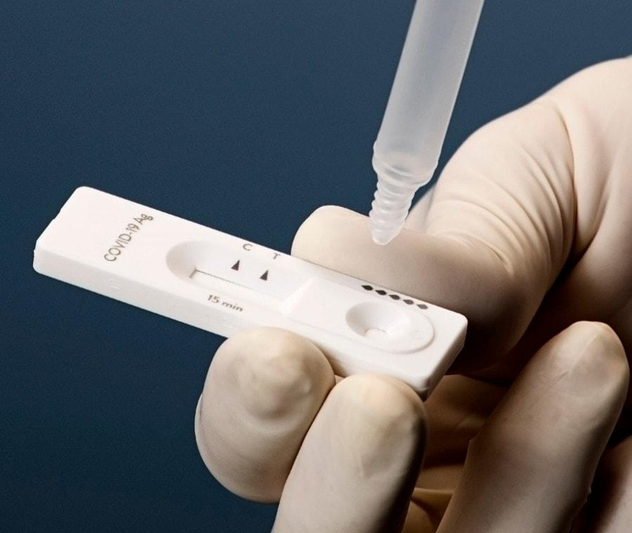 Test Antigenico COVID-19 - Test Antigenici Rapidi