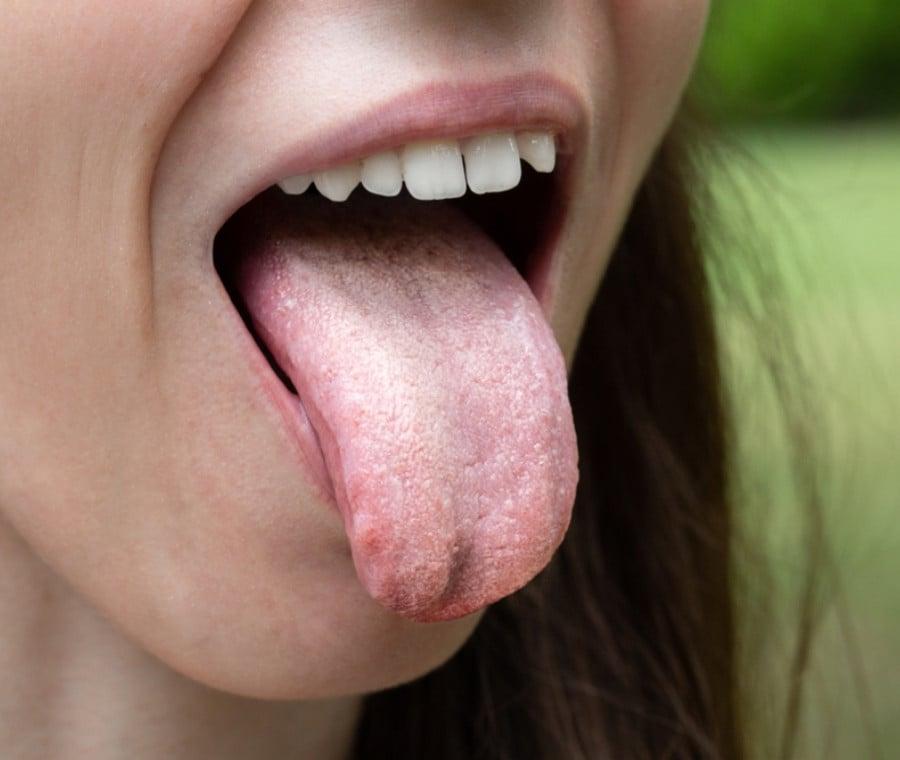 Probiotici e Salute del Cavo Orale