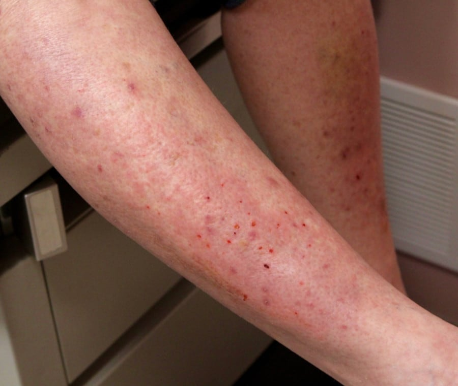 Dermatite Erpetiforme: Dermatite di Duhring