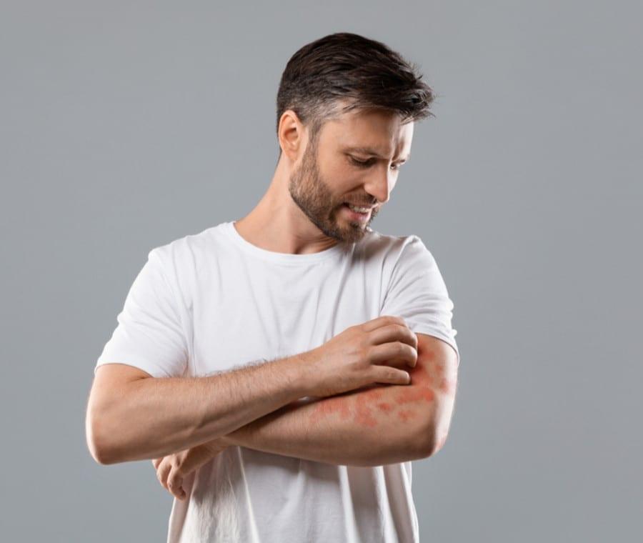 Dermatite - Erboristeria