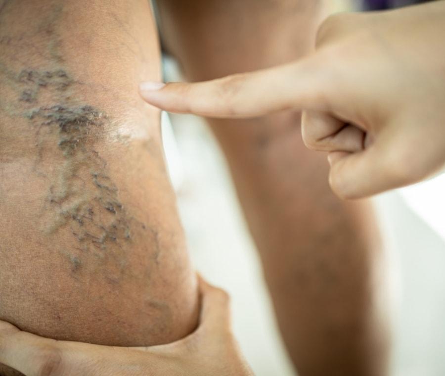 tratament de la varicoseza