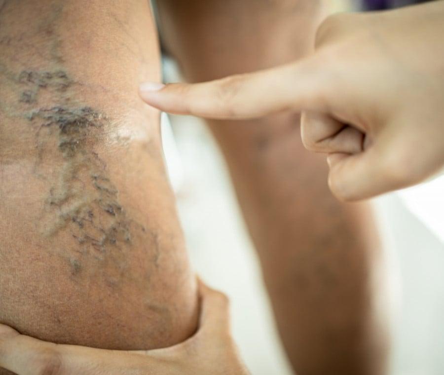 Vene Varicose: Cure e Terapia
