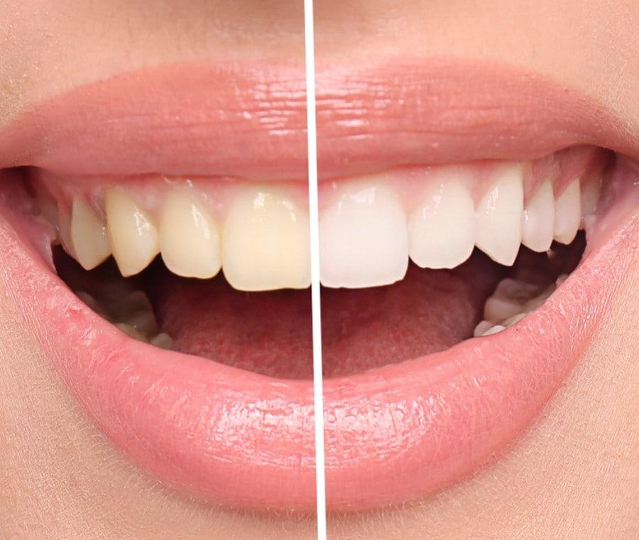 Sbiancamento Naturale dei Denti