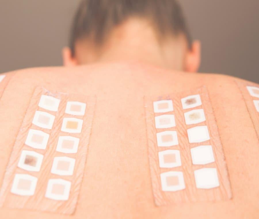 Patch Test Allergie: Cos'è? A Cosa Serve? Significato dei Risultati