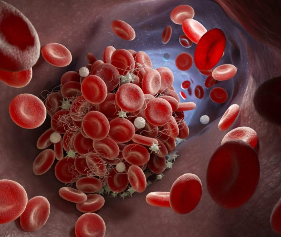 Coagulazione del Sangue: come si Coagula il Sangue?